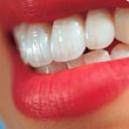 سفیدکننده دندان White Light